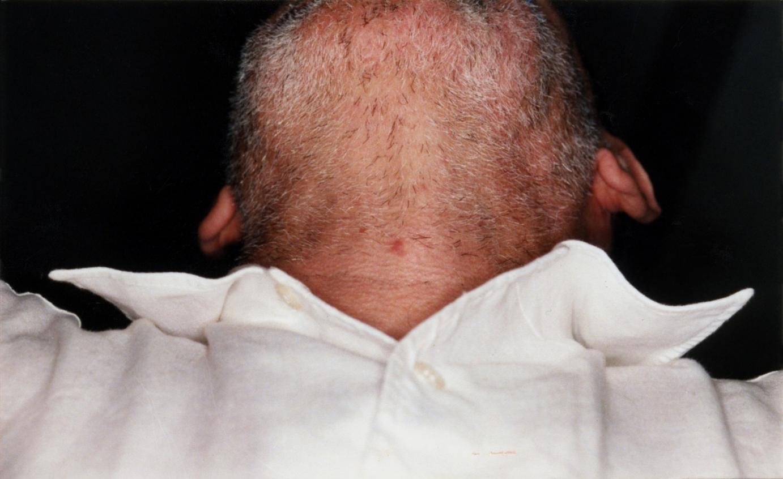 Sans titre, 1999-2003. Contre-plongée sur le menton d'un homme mal rasé.