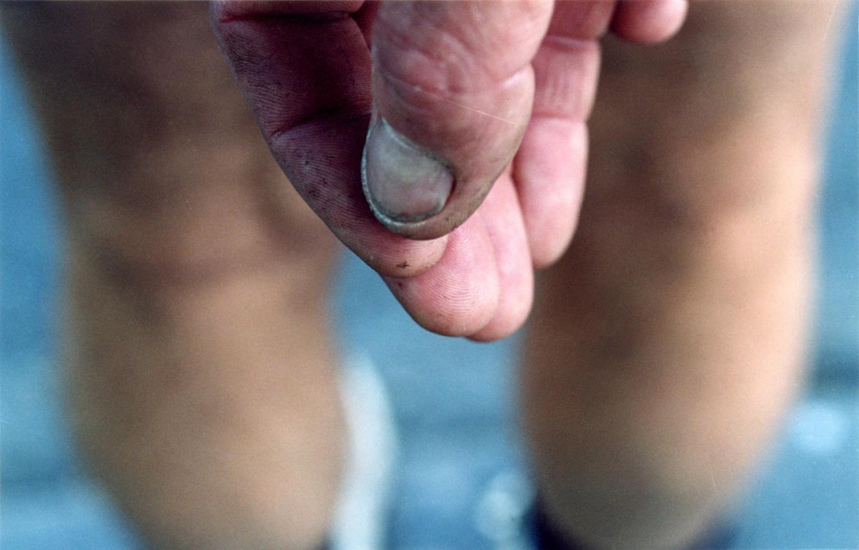 Sans titre, 1999-2003. Gros plan sur le bout des doigts d'une main.